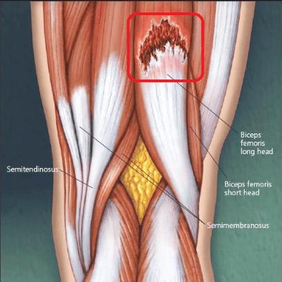 rotura de fibras cuadriceps sintomas