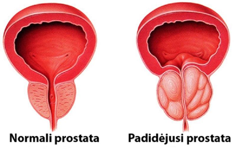 prostatos uzdegimas