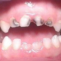 La caries dental en los niños