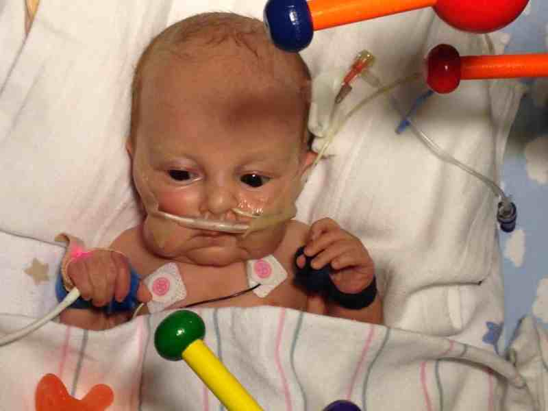 shows a little baby with an oxygen tube on his nose playing with a developmental toy.