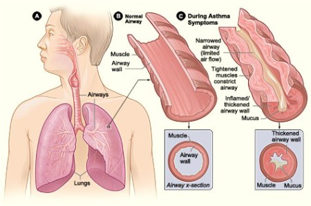 diagram shows airways affected by an asthma attack