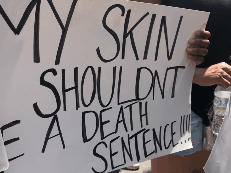 """black hands hold a sign reading, """"My skin shouldnt be a death sentence"""" during a rally against racism."""