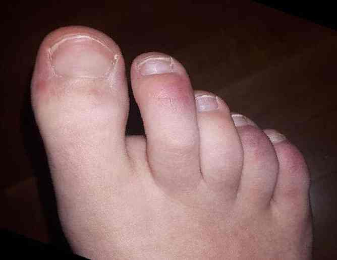 toes of a child who developed MIS-C after having COVID-19