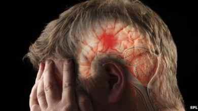4 طرق عن العلاج الطبيعي لمرضى الجلطة الدماغية