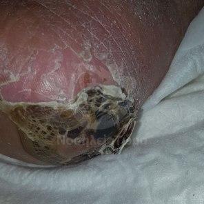 Θεραπεία Κατάκλισης Αριστερής Πτέρνας (1)