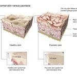 Healthy_vs_psoriasis_skin