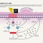 Psoriasis loop