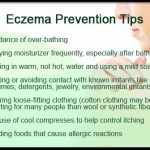 eczema-atopic-dermatitis-eczema-prevention-tips