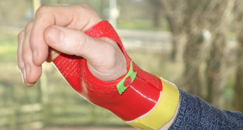 Injured young sportsmen put pioneering 3D printed splints to the test
