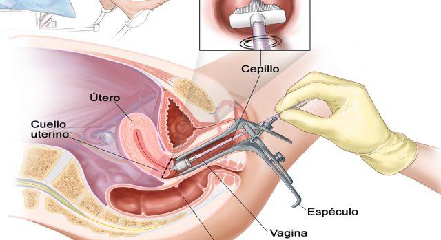 cáncer-de-útero