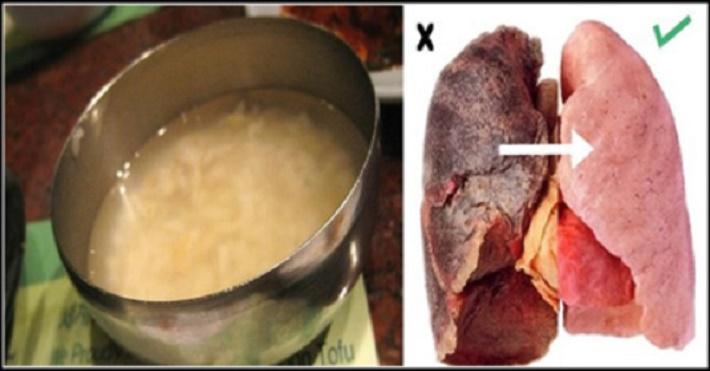 Receita caseira que limpa facilmente os pulmões, até de quem fuma a mais de 5 anos.