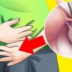 Cisto no ovário – Talvez você tenha isso e você não sabe. Aqui estão os sintomas!