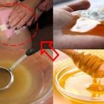 Esqueça xarope contra a tosse, este método natural para se livrar da tosse é comprovado eficaz!