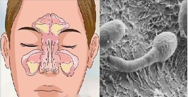 Nariz entupido e sinusite? A causa está em seu intestino, saiba como tratar.