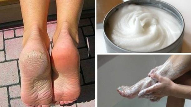 Elimine para sempre calos, rachaduras e fungos nos pés com essa poderosa receita caseira