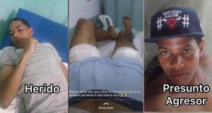 Policía-herido-La-Reforma