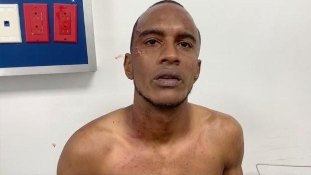 Hombre ataca otro a machetazos en San Francisco de Macoris
