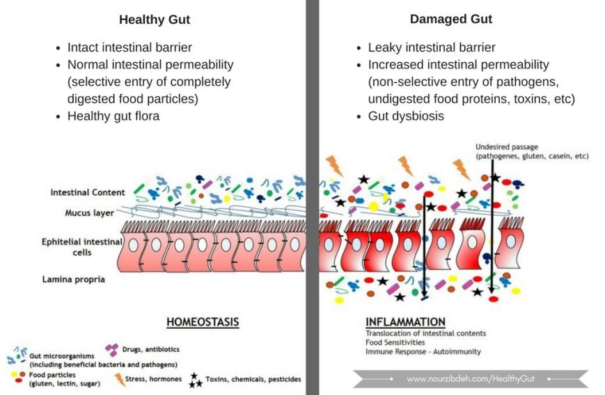 healthy vs damaged gut
