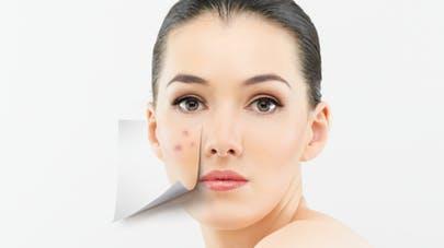 cicatrice acné
