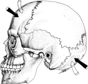 craniosacrale