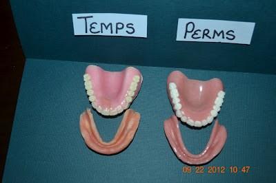 Temporary vs  Permanent Dentures | iweardentures!