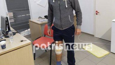 Photo of Αμαλιάδα: Αδέσποτο επιτέθηκε σε 16 μηνών βρέφος και τον πατέρα της