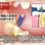 歯の神経を取る治療が終了したはずなのに、痛みがとまらない!なぜ?
