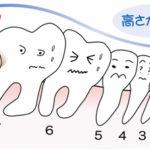 親知らずが原因で歯の神経が死んでしまうことがあります