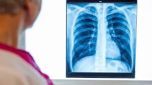 Uz rentgena izmeklējumu obligāti jāpierakstās