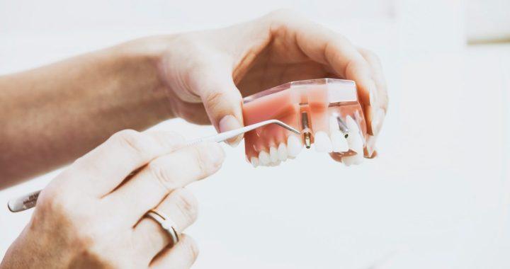 Septiņi visbiežāk uzdotie jautājumi par zobu implantiem