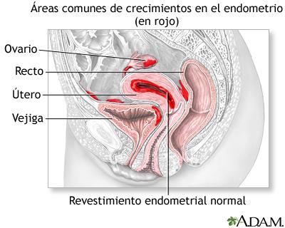 Enfermería en el cuidado de la Endometriosis (2/4)