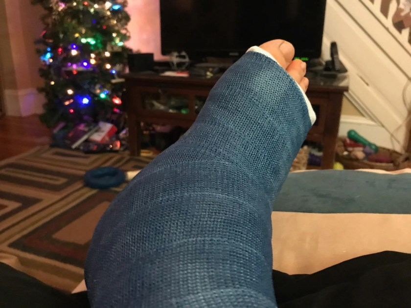 A right ankle in a blue cast