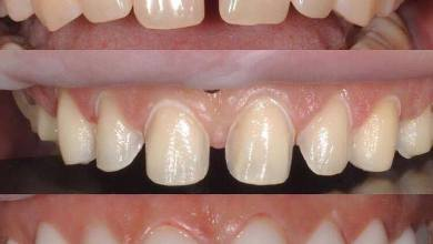 Photo of د غاښونو دښکلا يا cosmetic dentistry دڅانګي يوه مهيمه موضوع