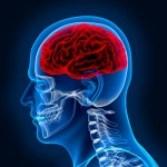 x ray - head - brain inside a skull