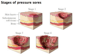 Pressure Sores Stages