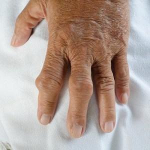 ácido-úrico-nas -mãos
