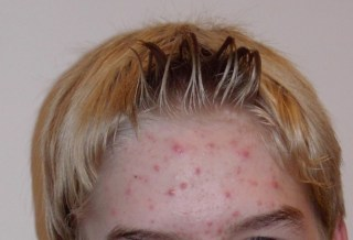 red spots on forehead