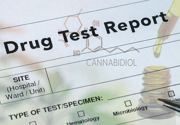 Read more about the article Will CBD Oil show up in a Drug Test?