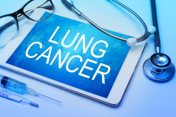 Lung cancer treatment in Puyallup, WA