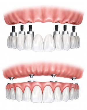 Implan Gigi Full Mouth- Global Estetik Dental Care