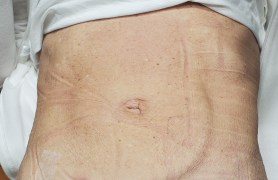 After laparoscopic diastasis surgery by Dr. Jacob