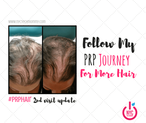 Almost 56 million Americans deal with hair loss every day and 40% of them are women. Are you one of them? Follow my #PRP Hair Treatment Journey for more hair!