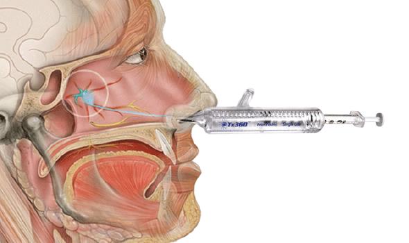 Headache NewsBlog | The New York Headache Center is a