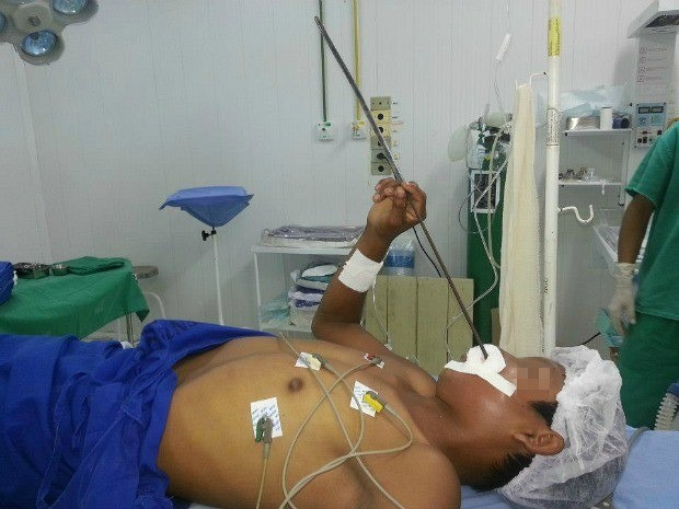 Adolescente viajou dois dias com o arpão no rosto (Foto: Divulgação/Hospital de Guarnição do Exército de São Gabriel da Cachoeira)