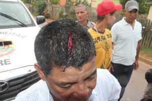 Vítima ficou com um corte profundo na cabeça - Foto: Alexandre Lima