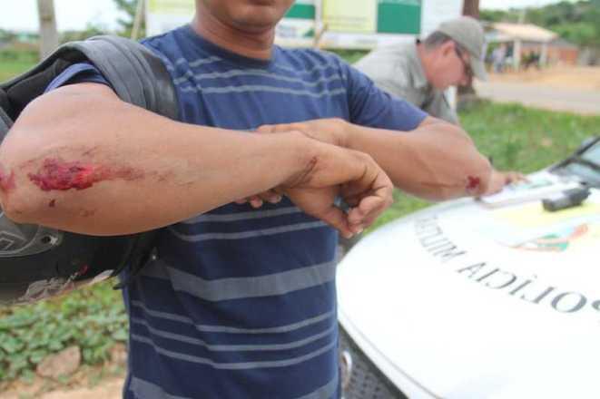 Antonio sofreu arranhões pelo corpo após cair da moto - Foto: Alexandre Lima