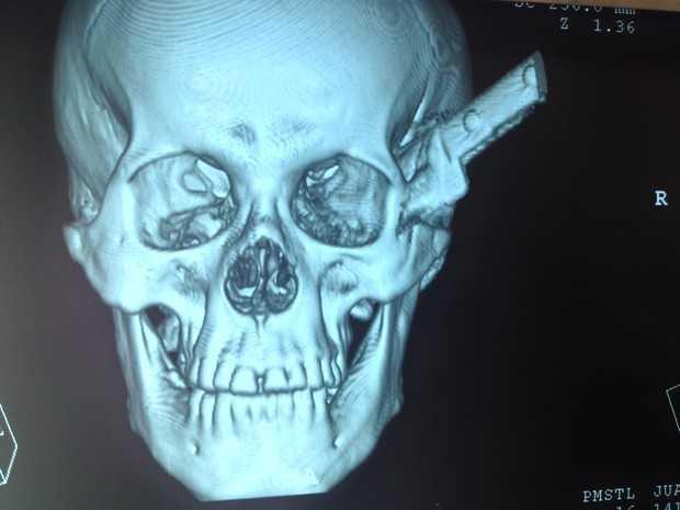 Em tomografia é possível ver a faca cravada no crânio do homem (Foto: Ellyo Teixeira/G1)