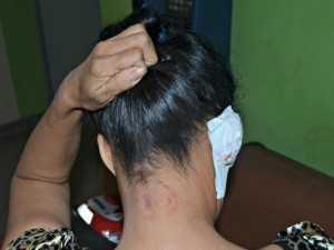 Namorado quase arranca orelha de mulher, após mordida/Foto: Adelcimar Carvalho/G1