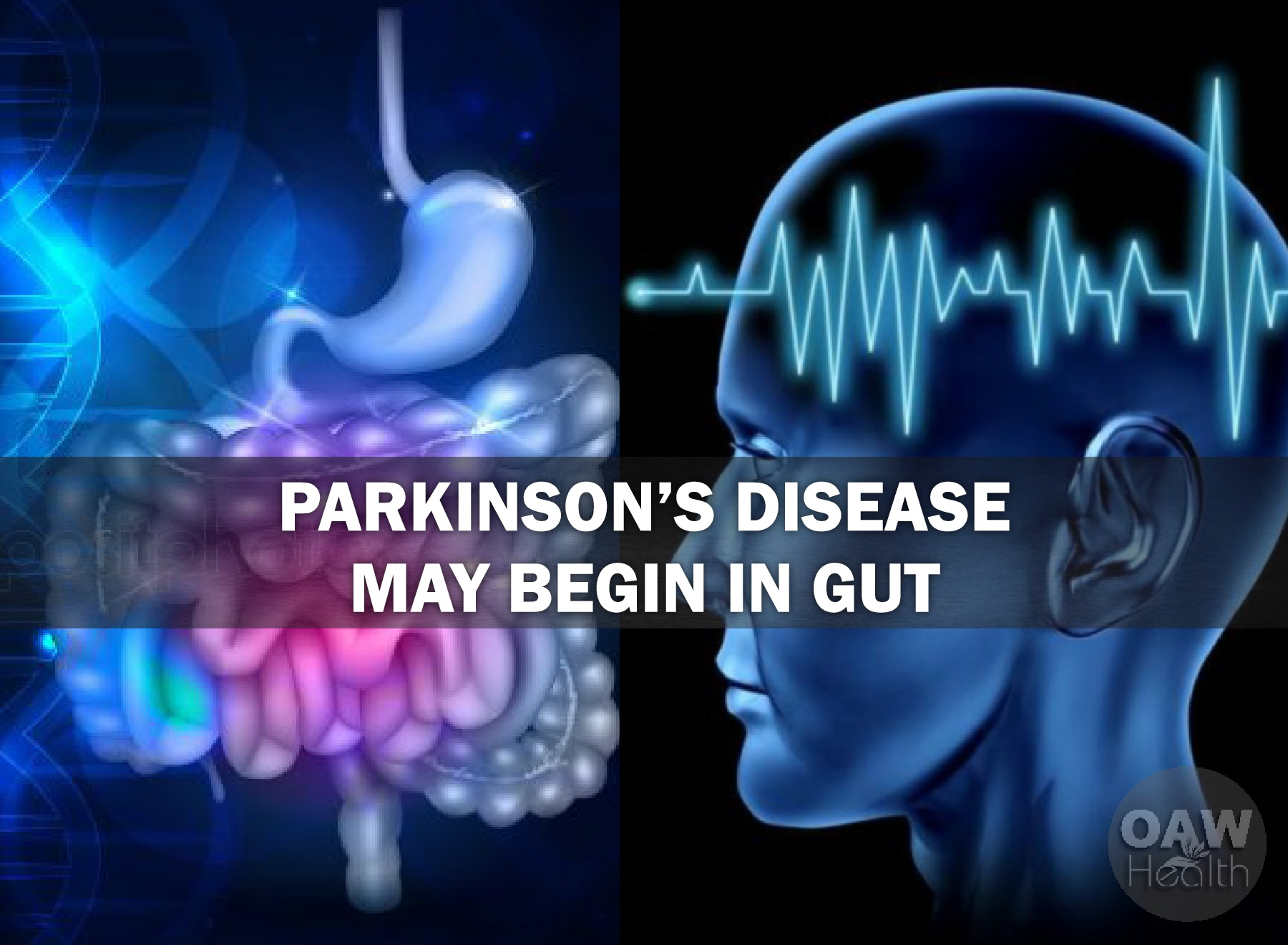 Large Study Parkinson's Disease May Begin in Gut