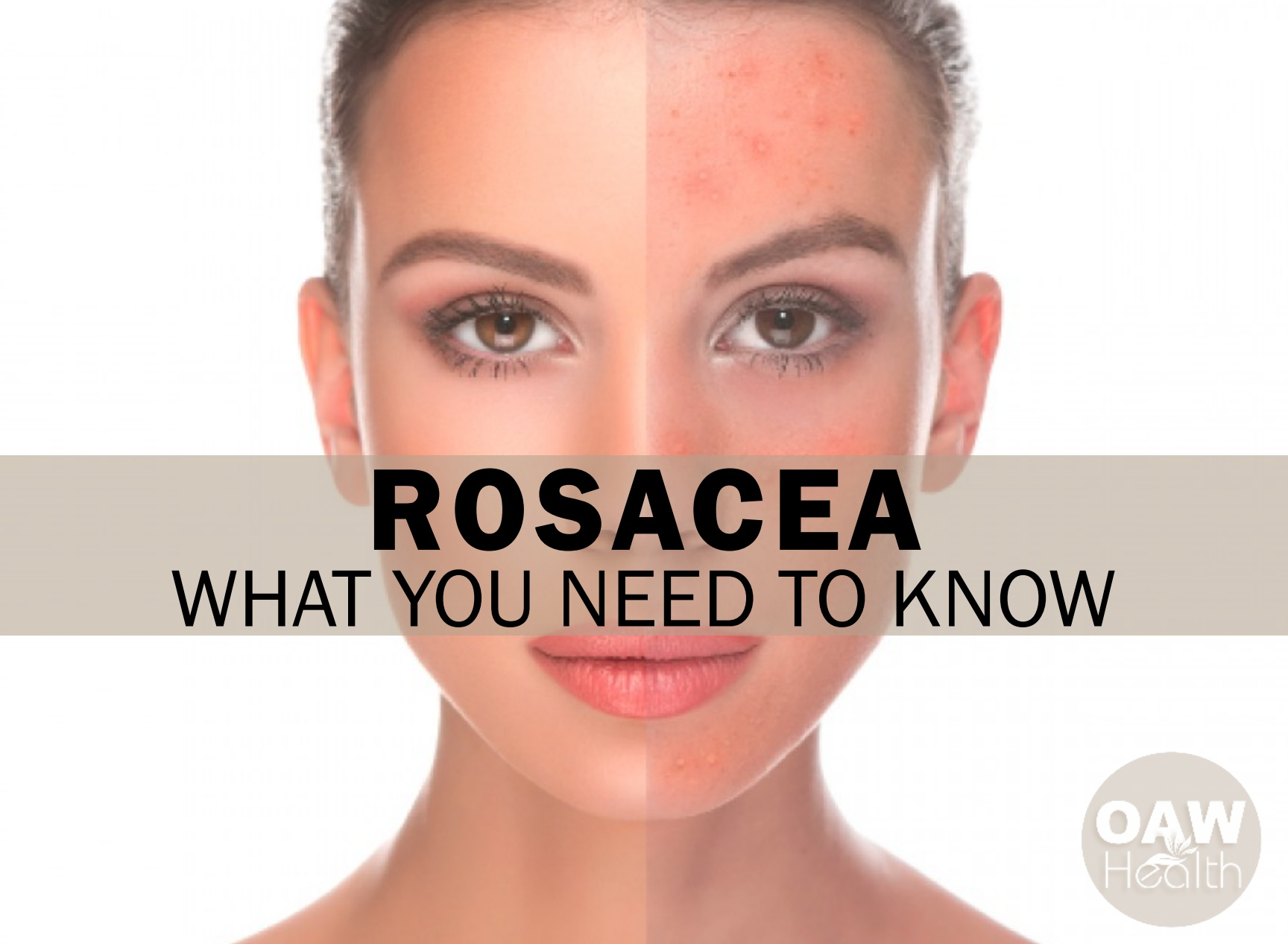 Rosacea – What You Need to Know